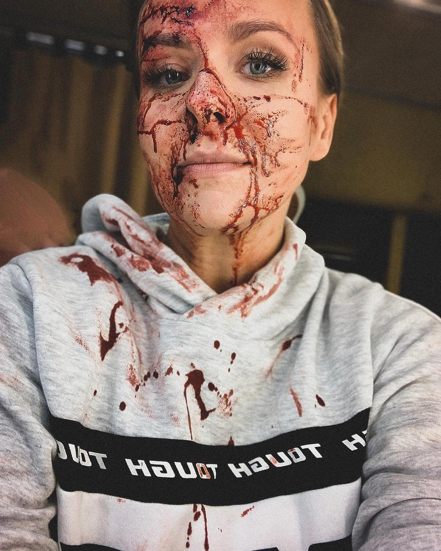Aneta Zając pokazała szokujące zdjęcie zakrwawionej twarzy. Co się stało?