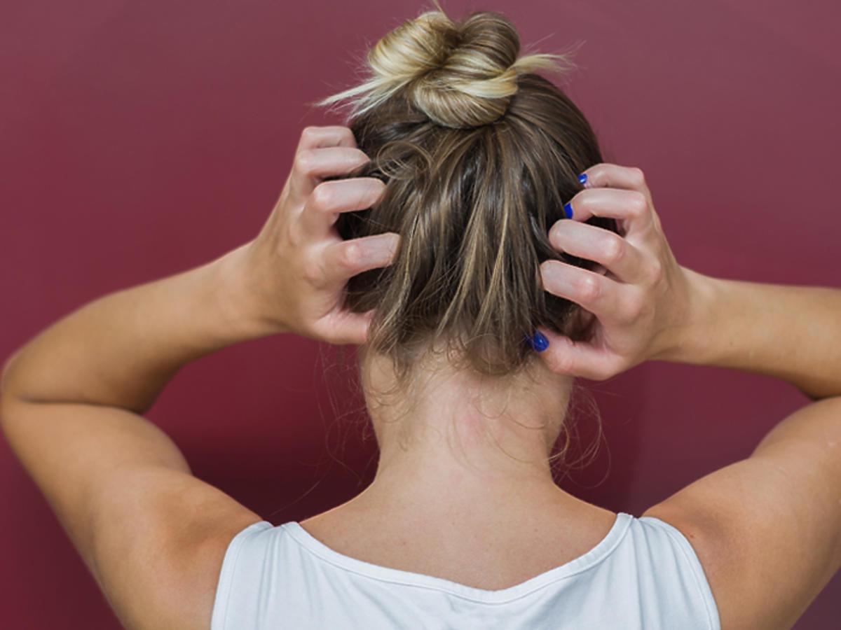 atopowe zapalenie skóry głowy przyczyny objawy leczenie
