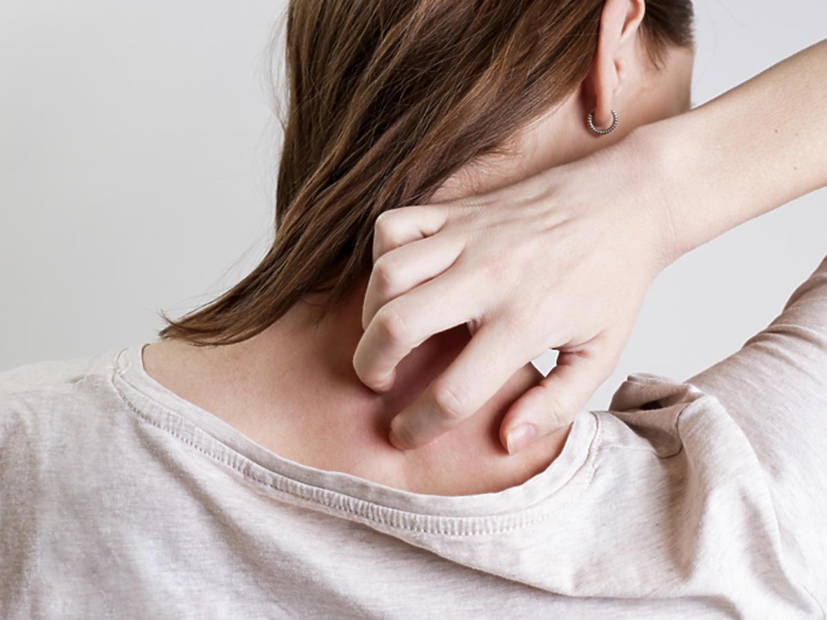 atopowe zapalenie skóry leczenie