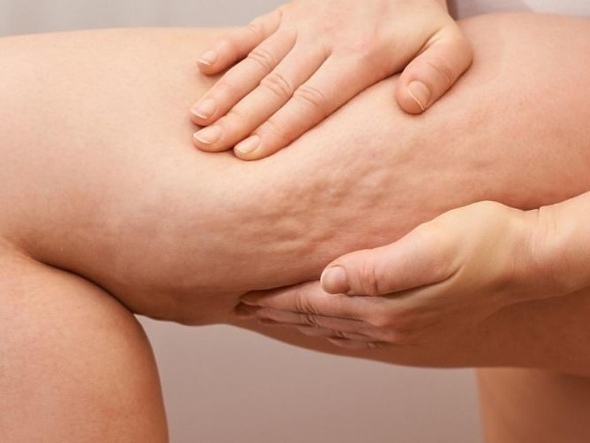 cellulit na udach