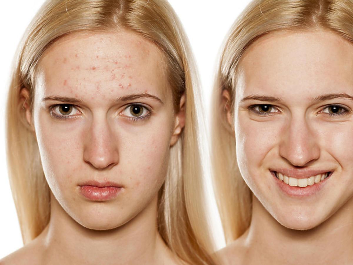 cera przed i po użyciu toniku do twarzy