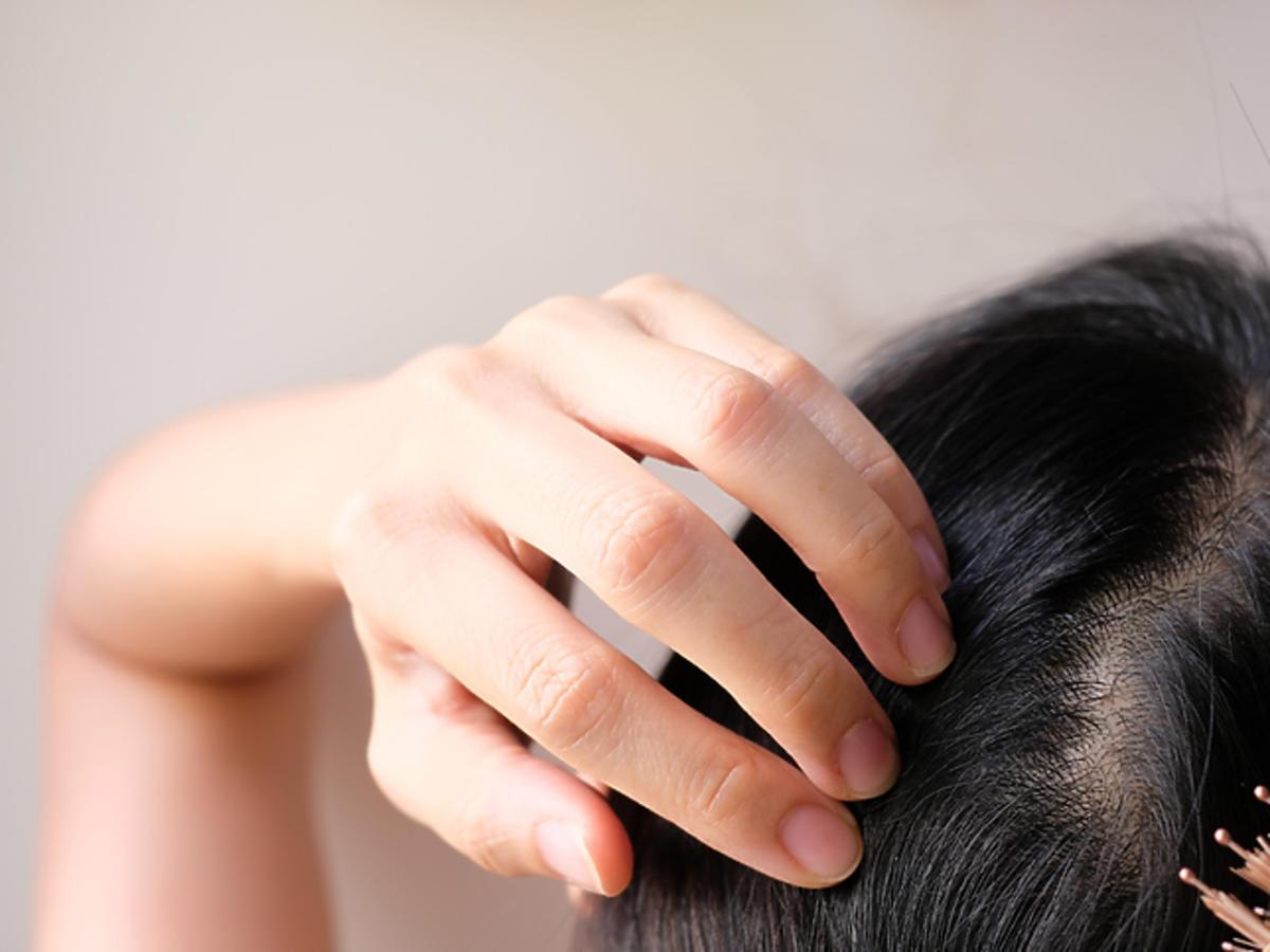 Domowa wcierka do skóry głowy. Przyspiesza porost włosów!