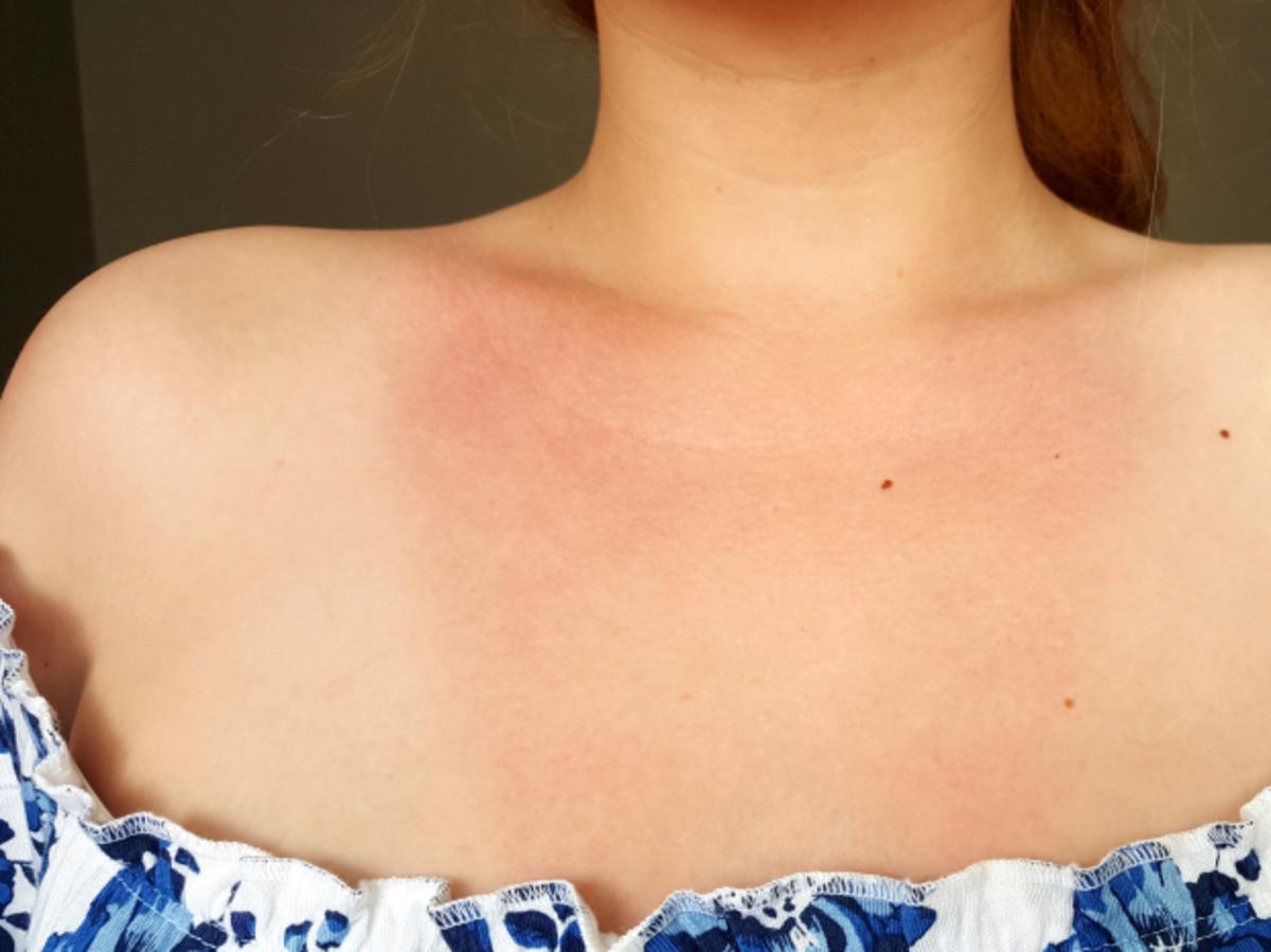 dziewczyna z oparzeniami słonecznymi na dekolcie
