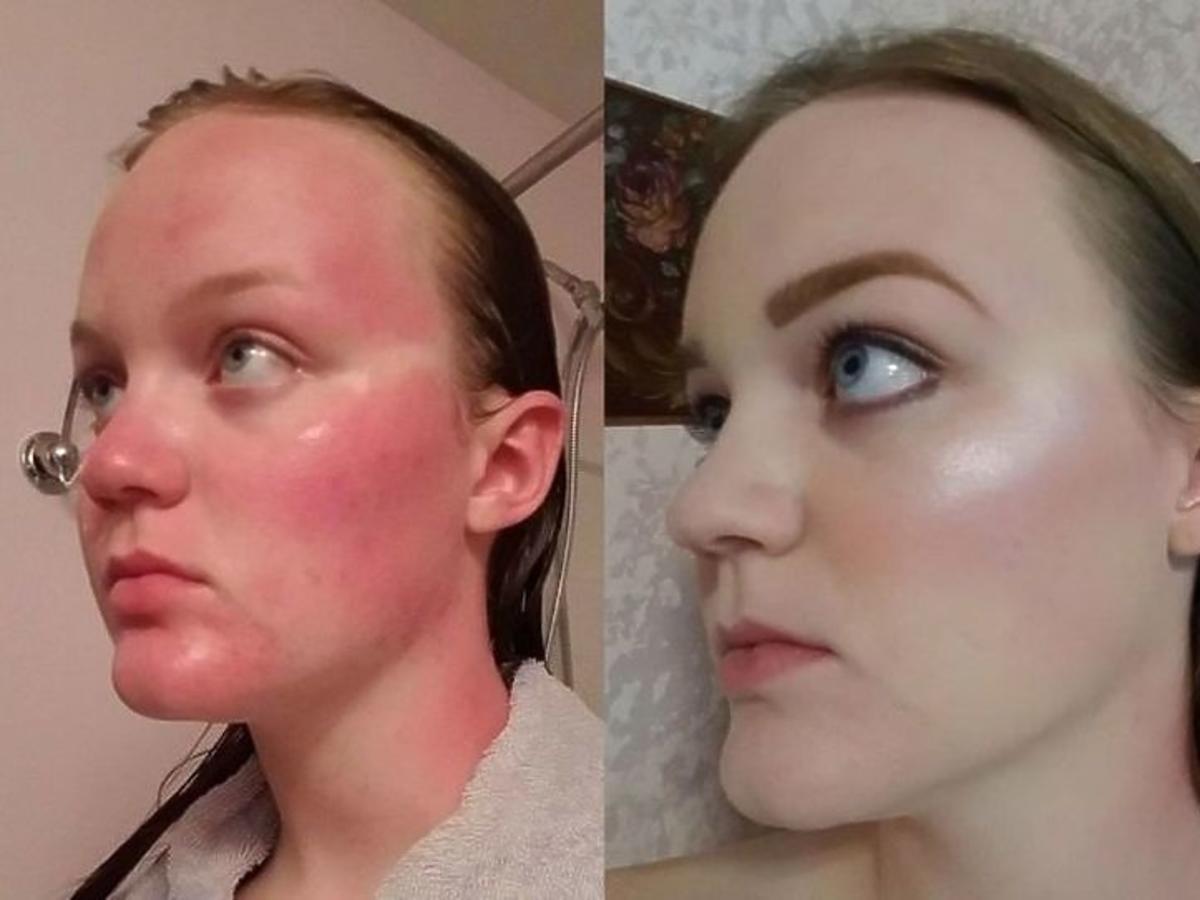 dziewczyna z poparzoną twarzą metamorfoza przed i po
