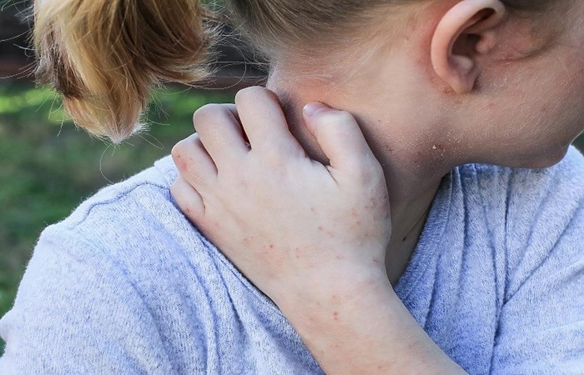 Dziewczynka z atopowym zapaleniem skóry
