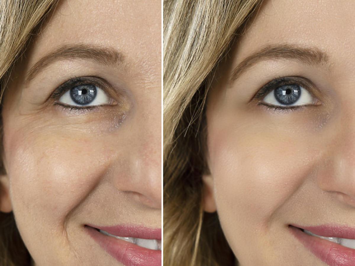 efekt przed i po zastosowaniu kuracji przeciwzmarszczkowej