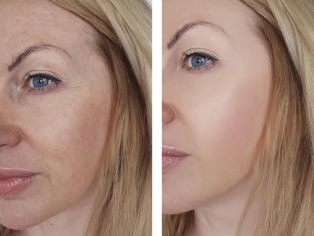 efekty stosowania retinolu
