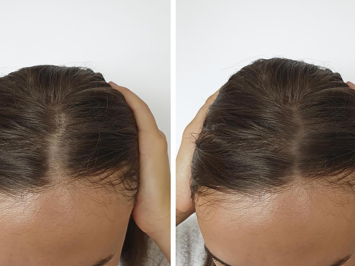 Efekty stosowania wcierki do włosów Venita
