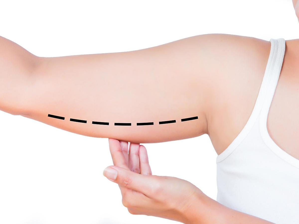 jak schudnąć z ramion