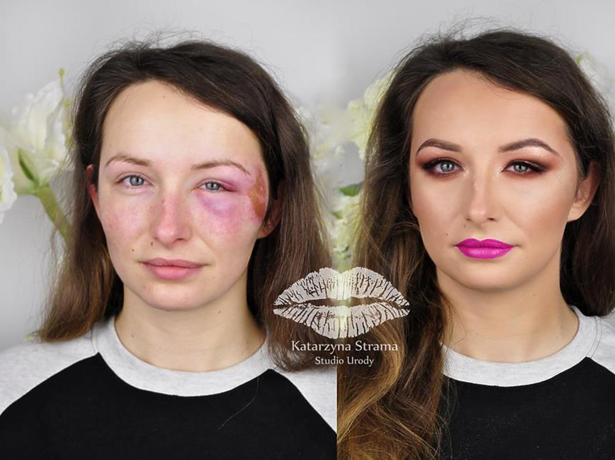 jak zakryć siniaki makijażem