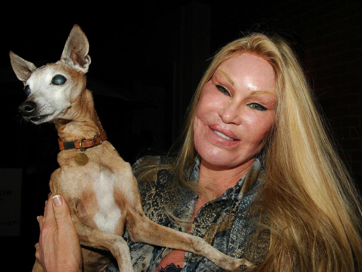 """Jocelyn Wildenstein, znana jako """"Kobieta Kot"""" jest jedną z najsławniejszych ofiar operacji plastycznych. A jak wyglądała wcześniej?"""
