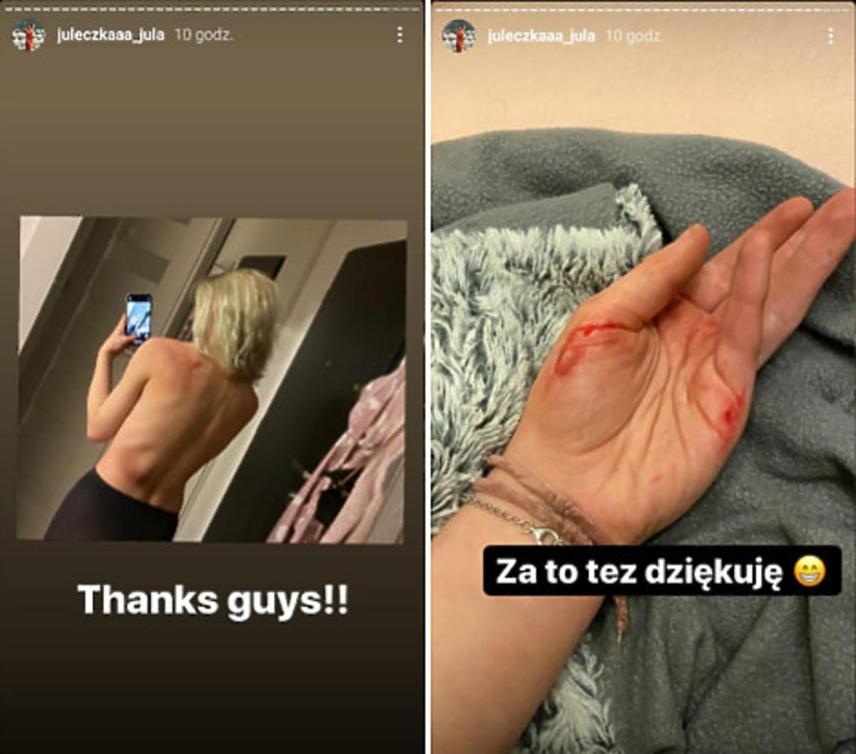 Julia Wróblewska dotkliwie pobita na Strajku Kobiet