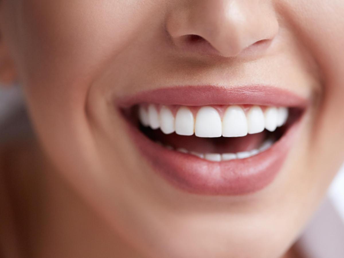 kamień na zębach przyczyny skutki usuwanie pradontoza
