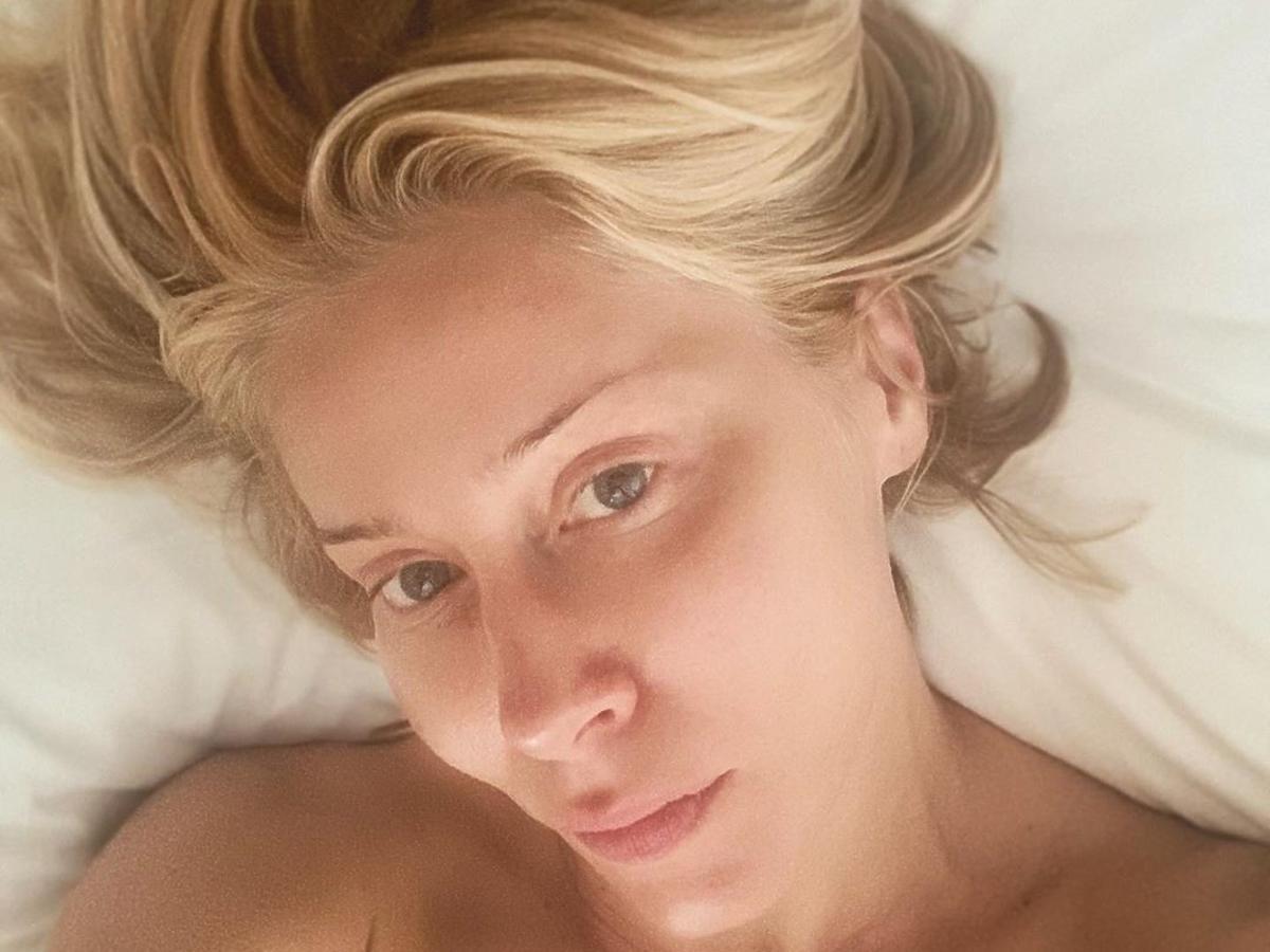 Katarzyna Warnke skrytykowana za lifting powiek