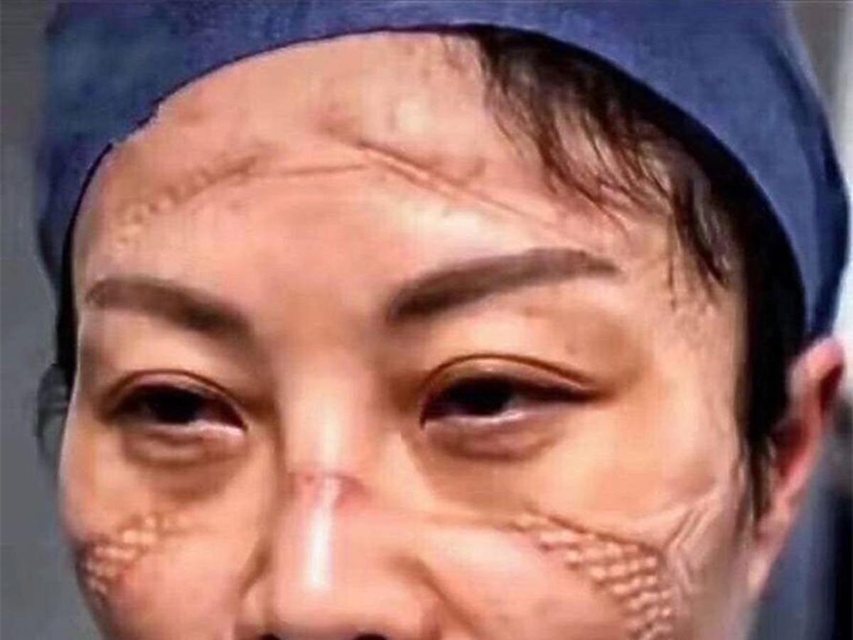 Kolejne szokujące zdjęcia pielęgniarek. Na ich twarzach widać skutki pandemii koronawirusa