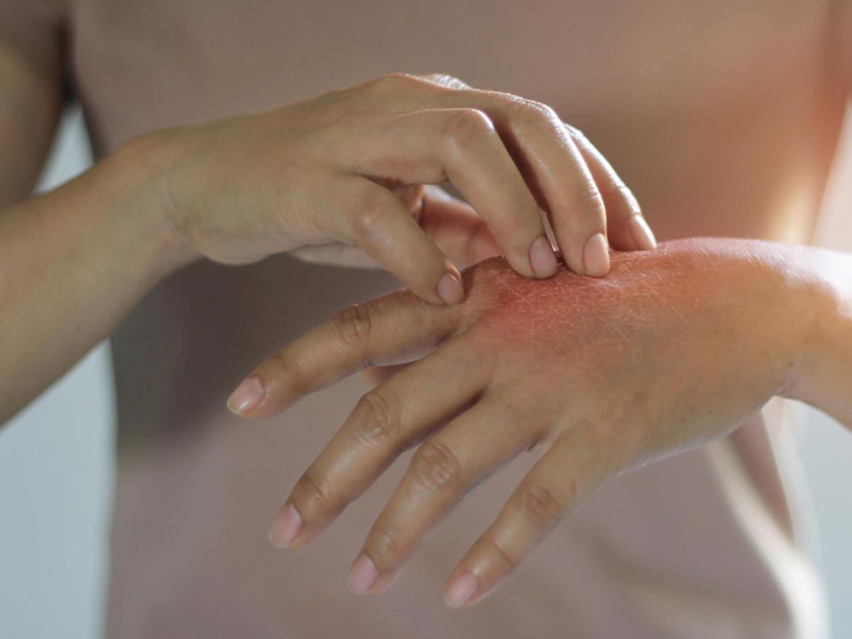 koronawirus atopowe zapalenie skóry