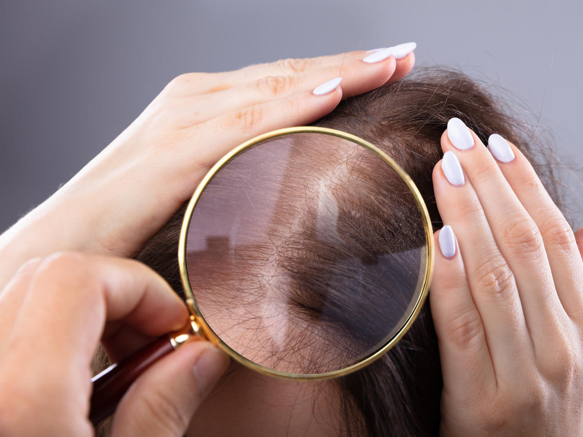 łysienie telogenowe