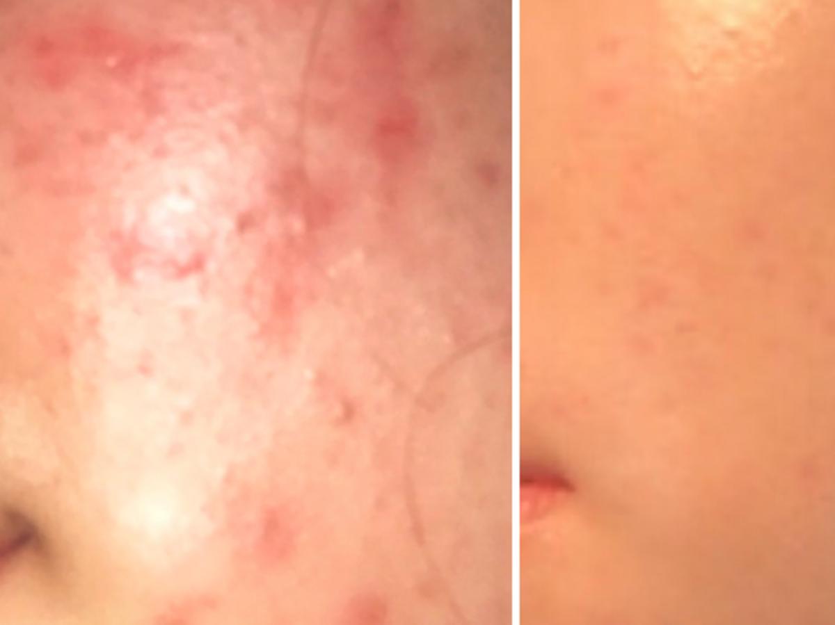 metamorfoza skóry z trądzikiem przed i po