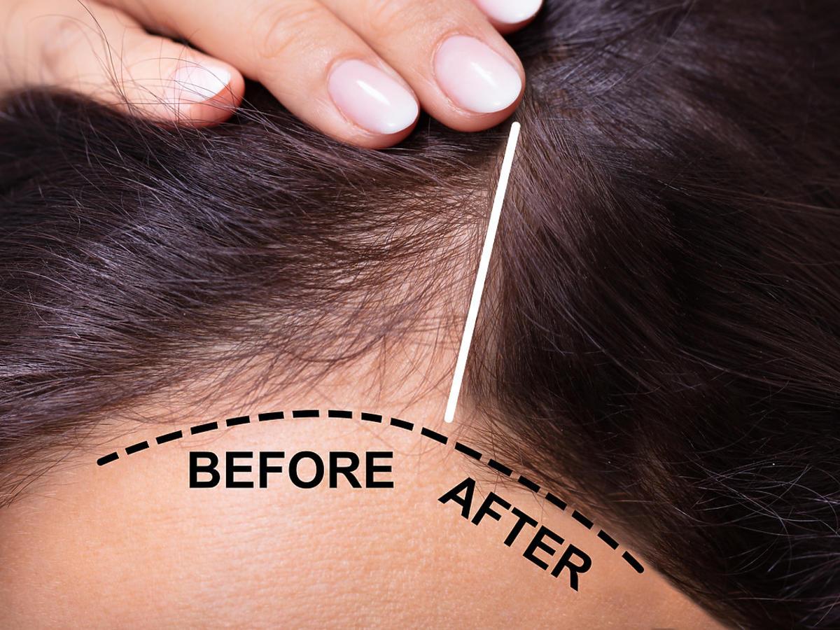 mikropigmentacja skóry głowy - przed i po