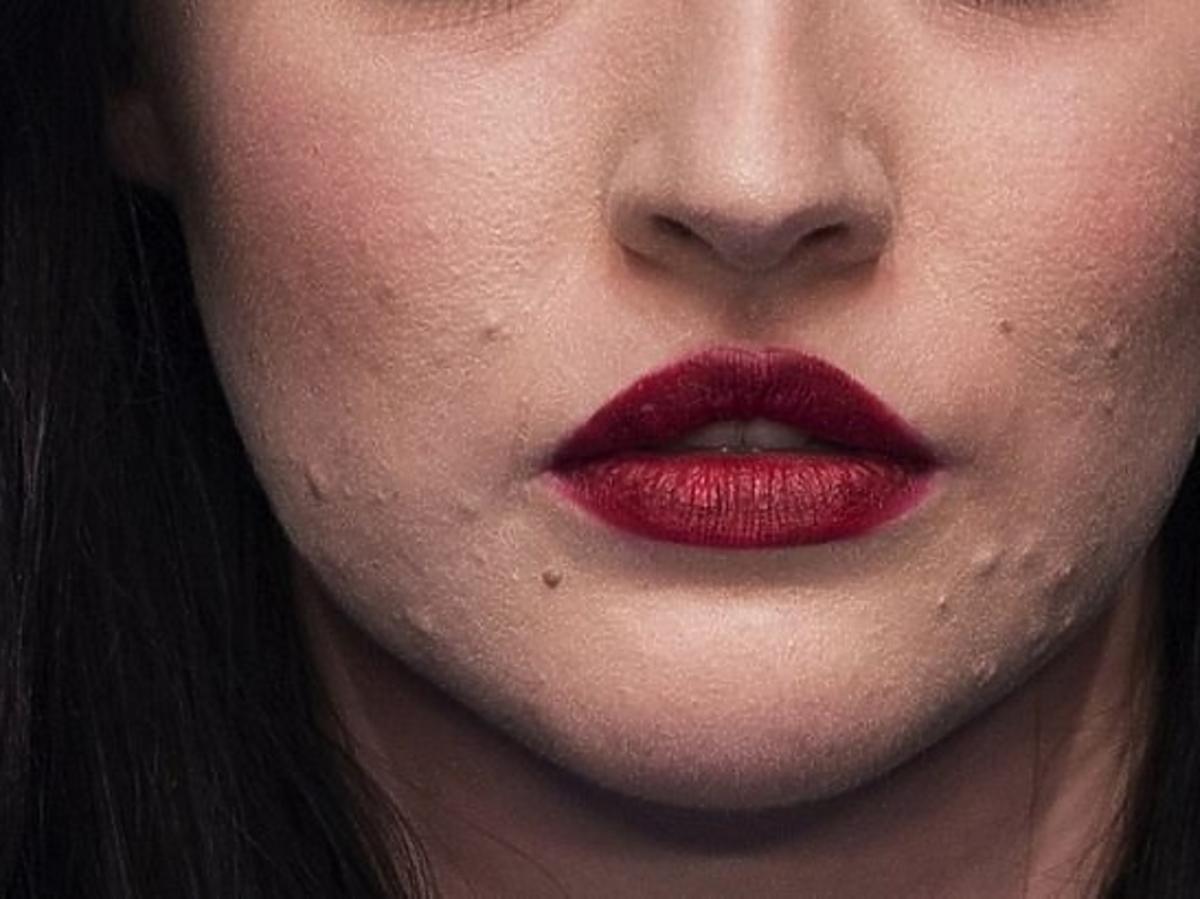 modelka z trądzikiem Starley Smith zbliżenie na brodę i usta