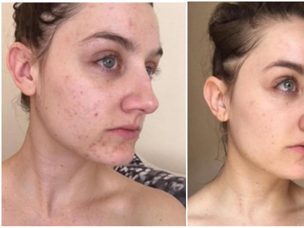 mycie twarzy cera tradzikowa przed i po