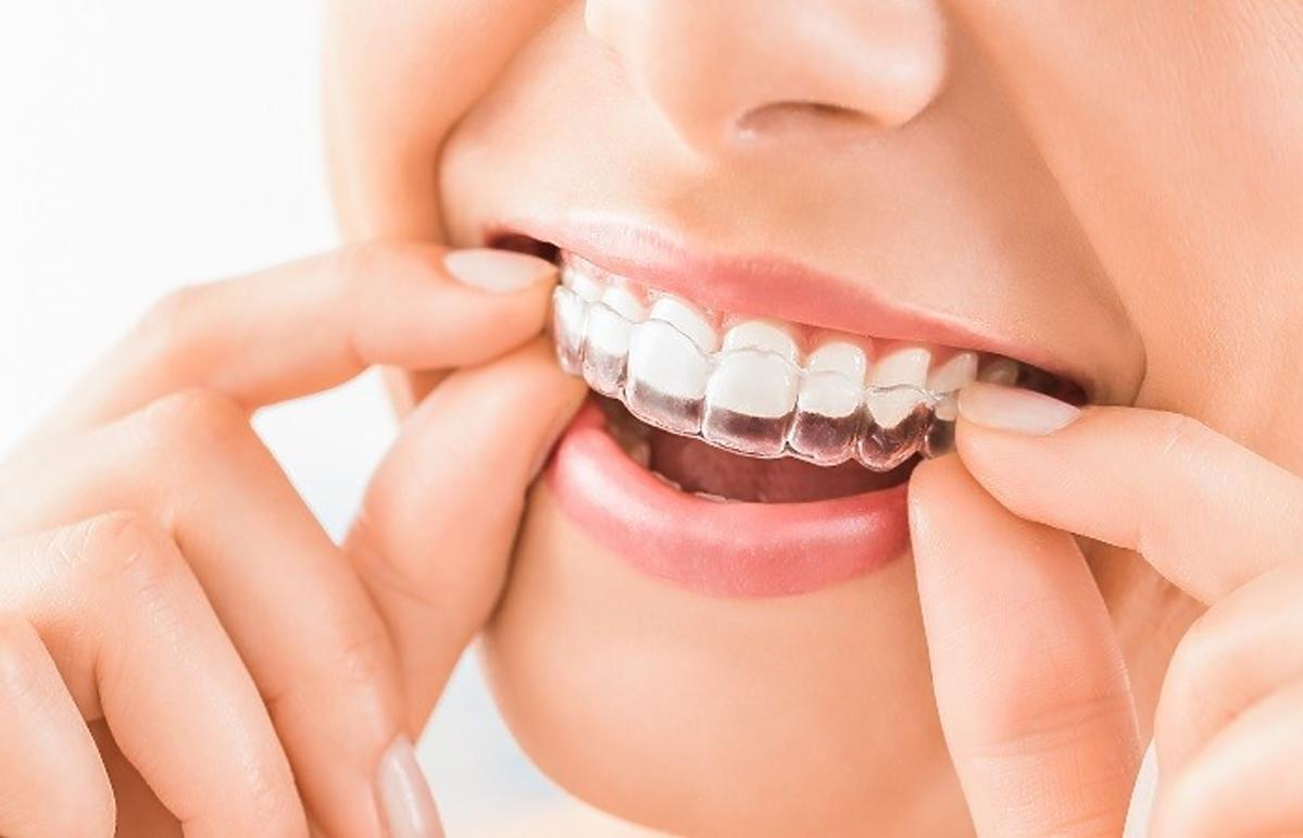 Nakładka wybielająca na zęby