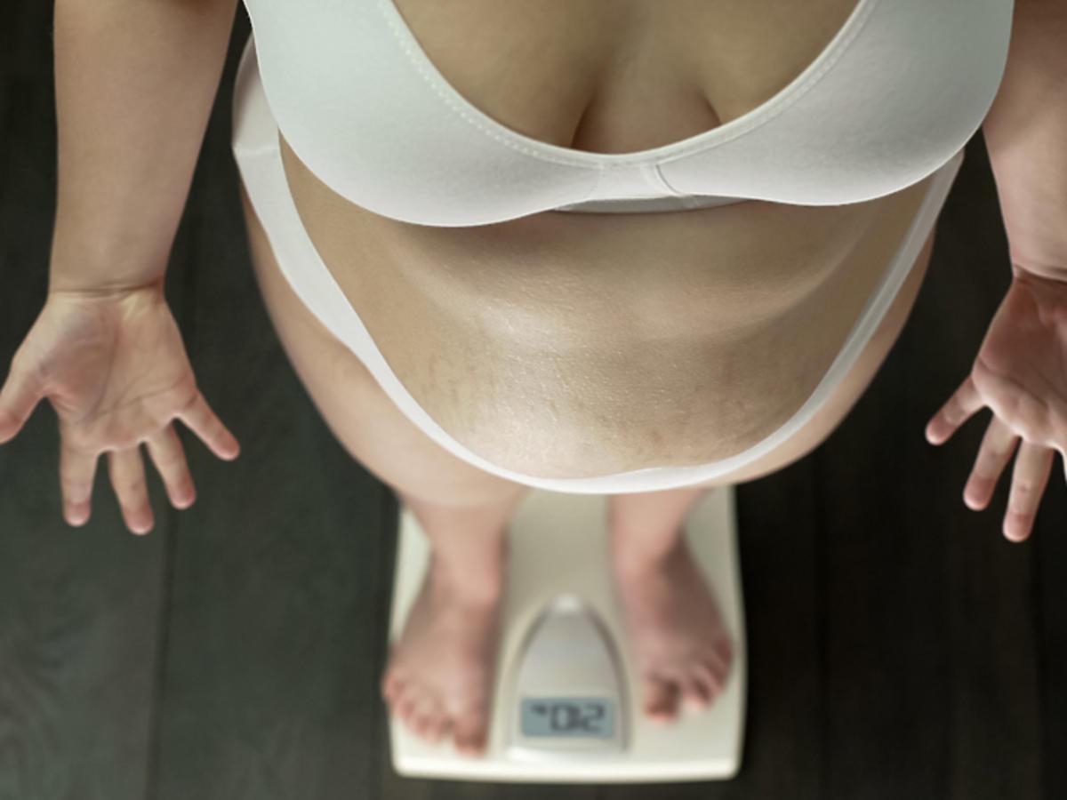 obrzęk tłuszczowy