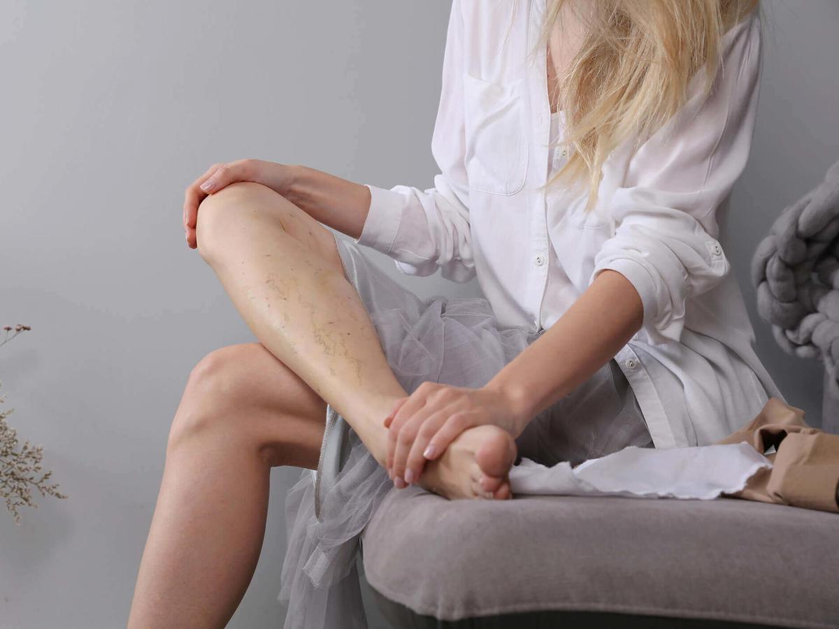 pękające naczynka na nogach