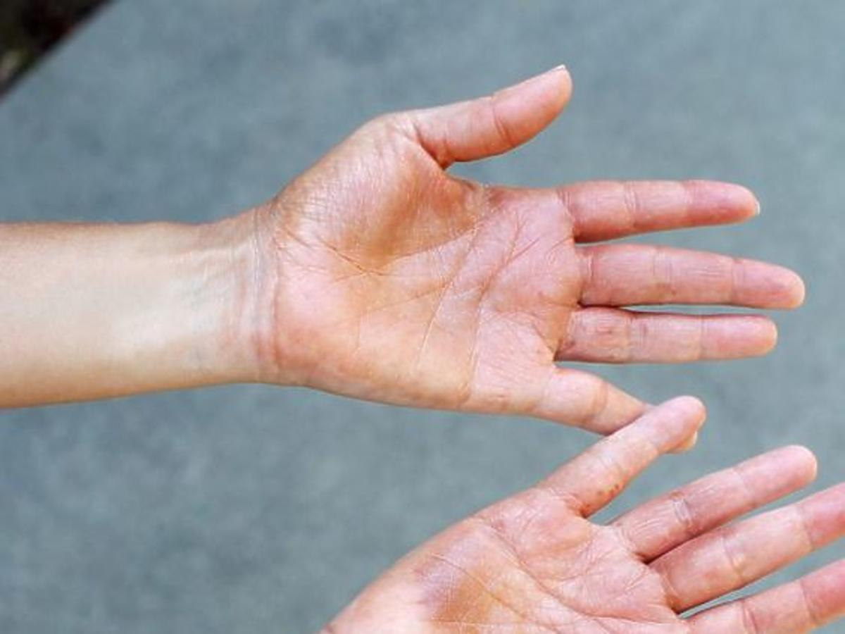 Plamy po samoopalaczu na dłoniach