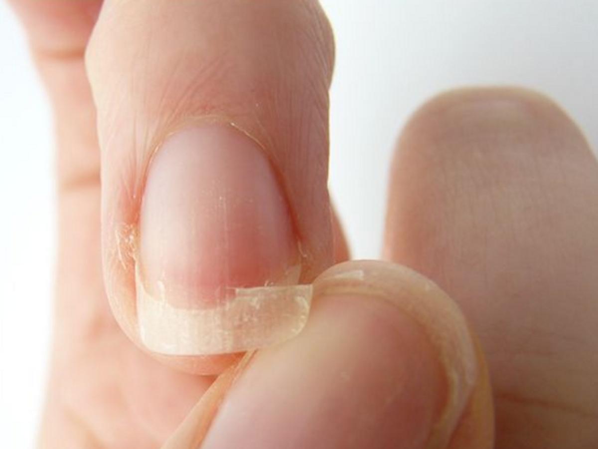 pokruszone, rozdwajające się paznokcie