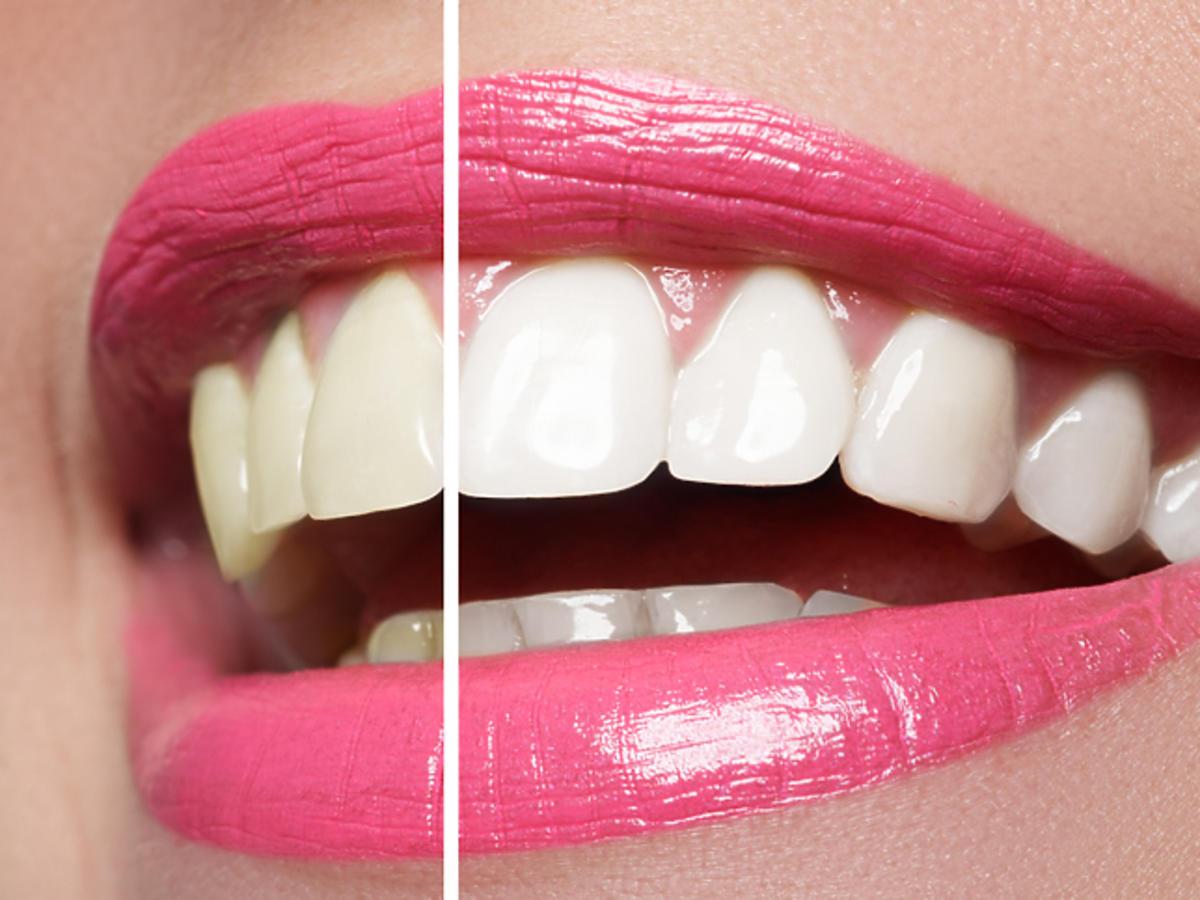 Promocja na kurację wybielającą zęby Biała Perła w Rossmannie