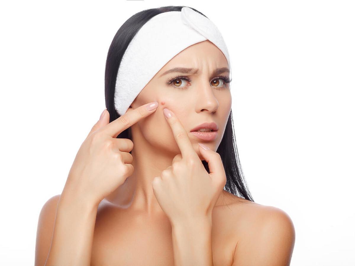 pryszcz podskórny na twarzy