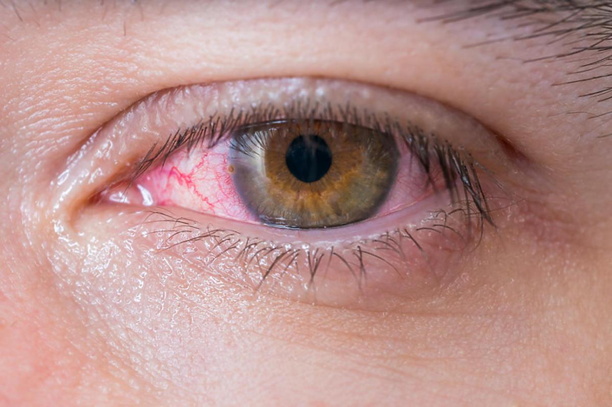Różowe oko jako objaw koronawirusa
