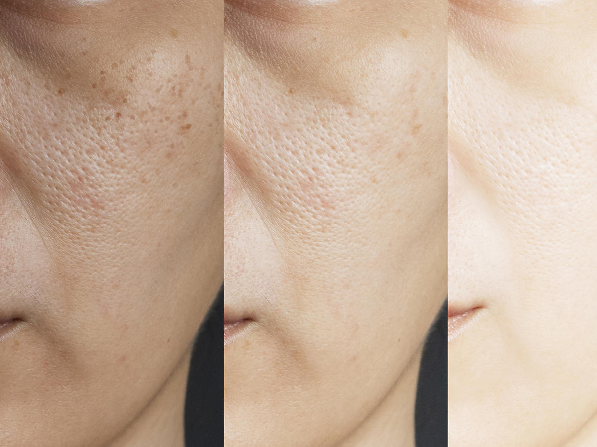 ROZSZERZONE PORY - efekty stosowania pasty węglowej do twarzy