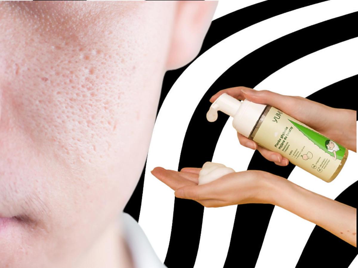 rozszerzone pory na twarzy - pianka do mycia twarzy Yumi Aloe