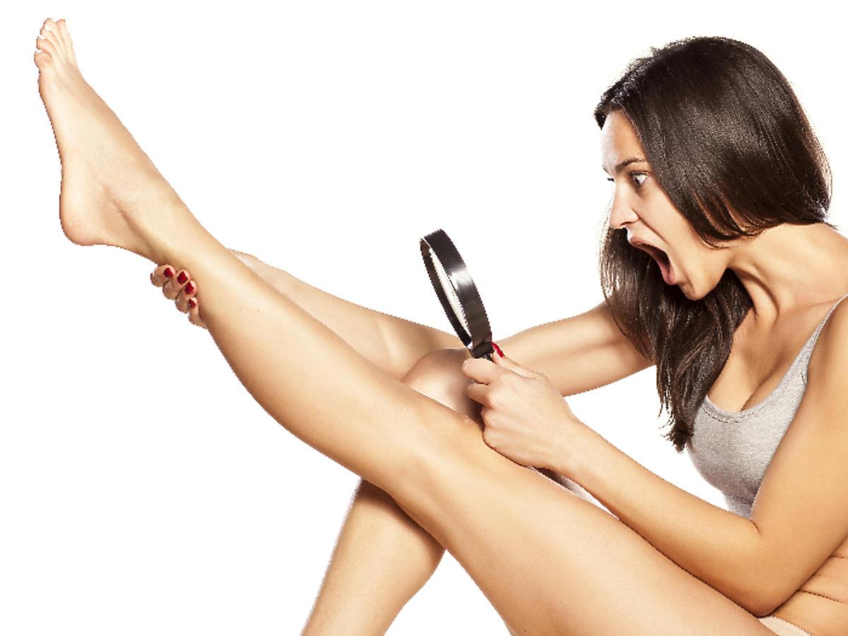 skóra podrażniona depilacją