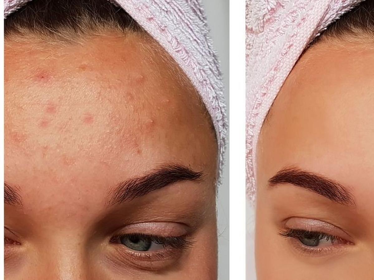 Skóra z trądzikiem przed i po