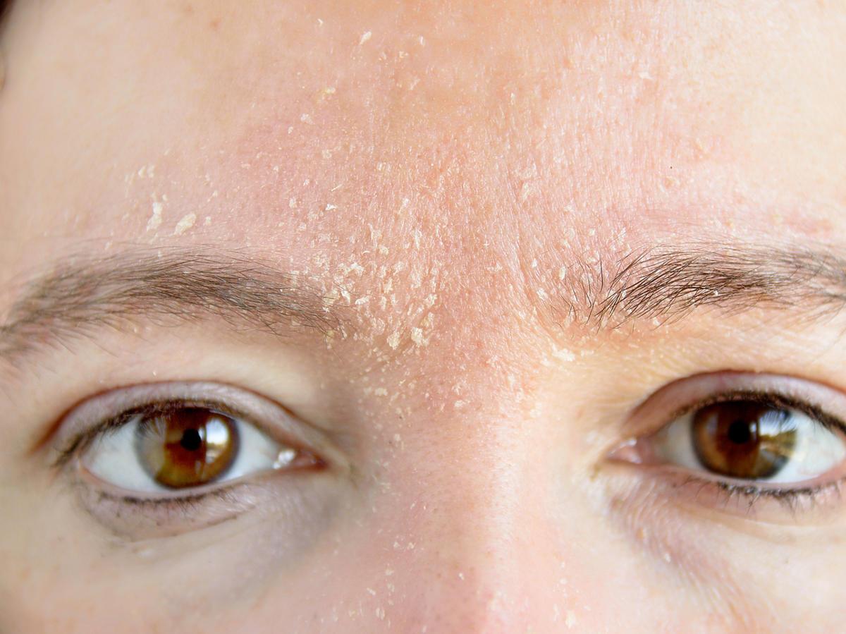 sucha skóra twarzy