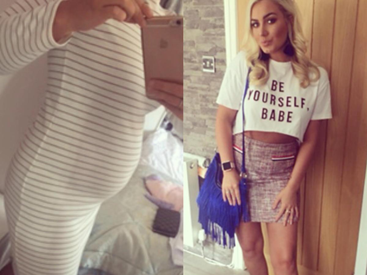 Ta kobieta wyglądała jak w 9 miesiącu ciąży. Wystarczyła zmiana diety, by jej ciało zmieniło się nie do poznania