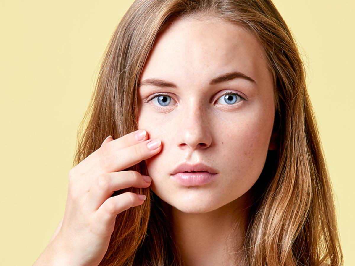 trądzik młodzieńczy przyczyny, kosmetyki, leczenie