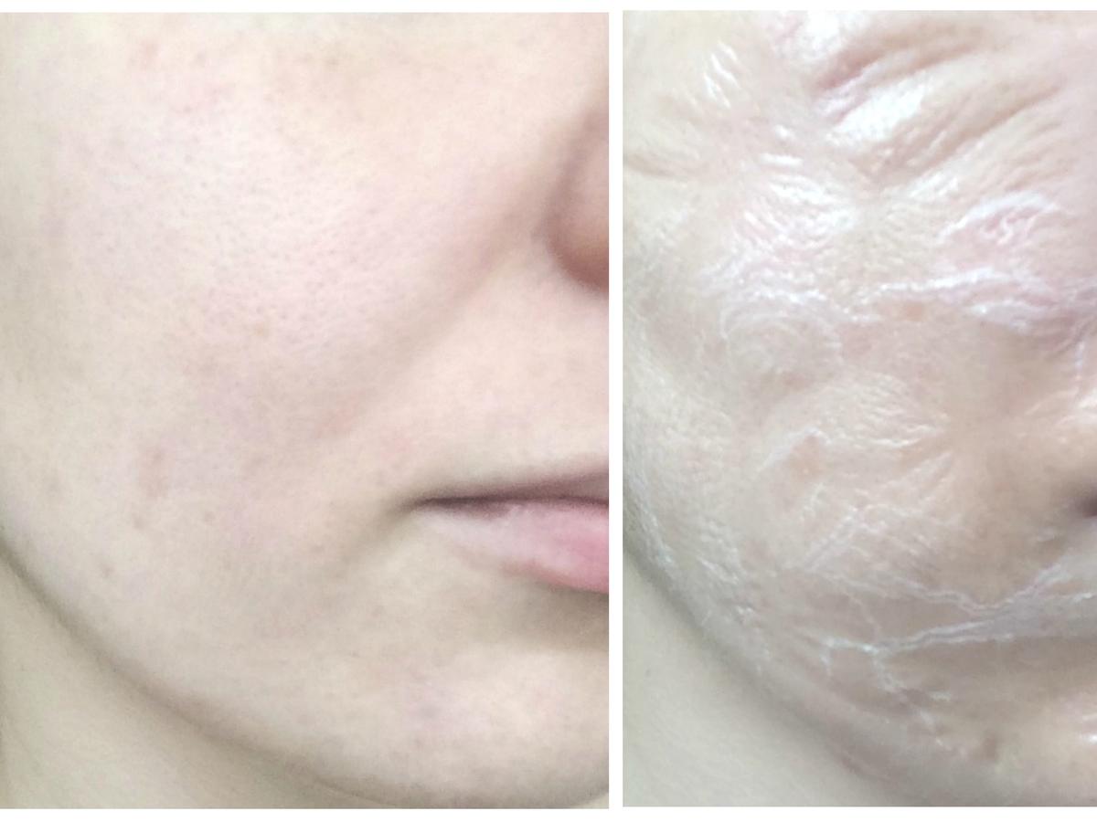 twarz przed i po - na tawrzy widoczny efekt bardzo starej skóry