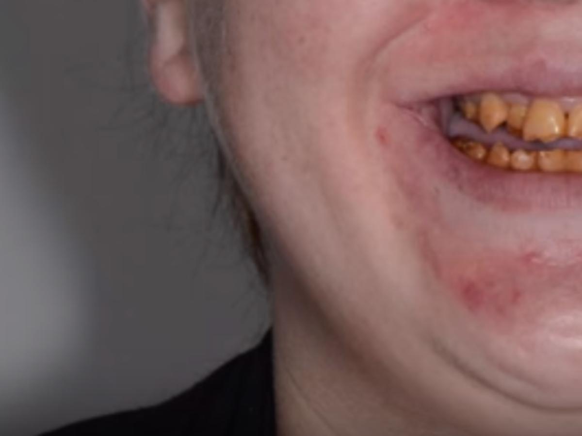 uśmiech z niedorozwojem szkliwa