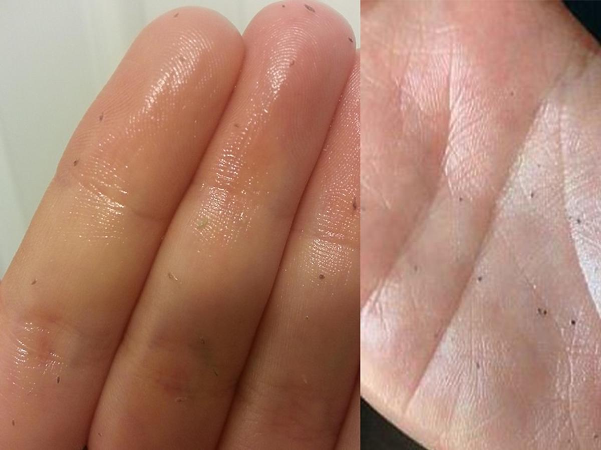 usunięte wągry i zanieczyszczenia na dłoni