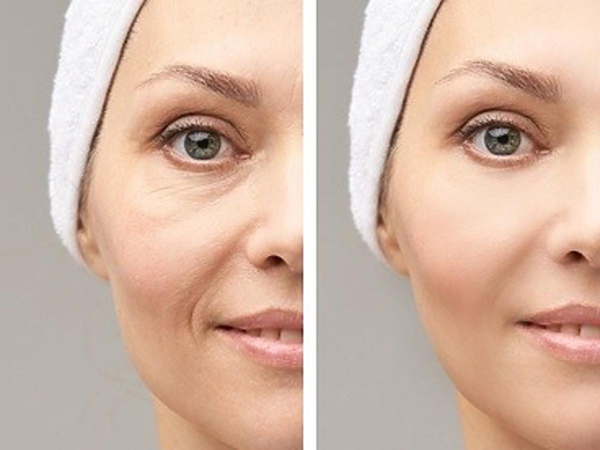 Worki pod oczami przed i po