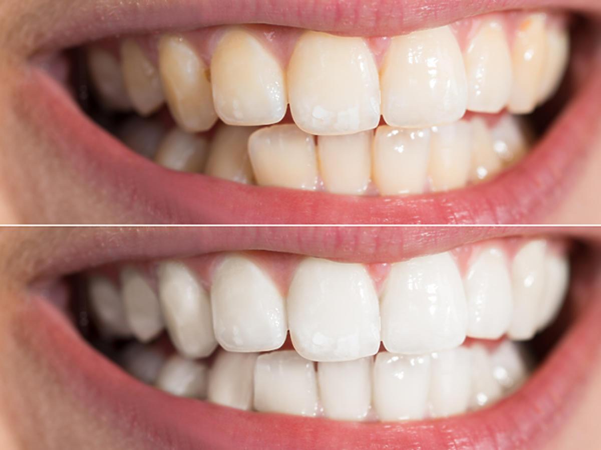 wybielanie zębów rossmann