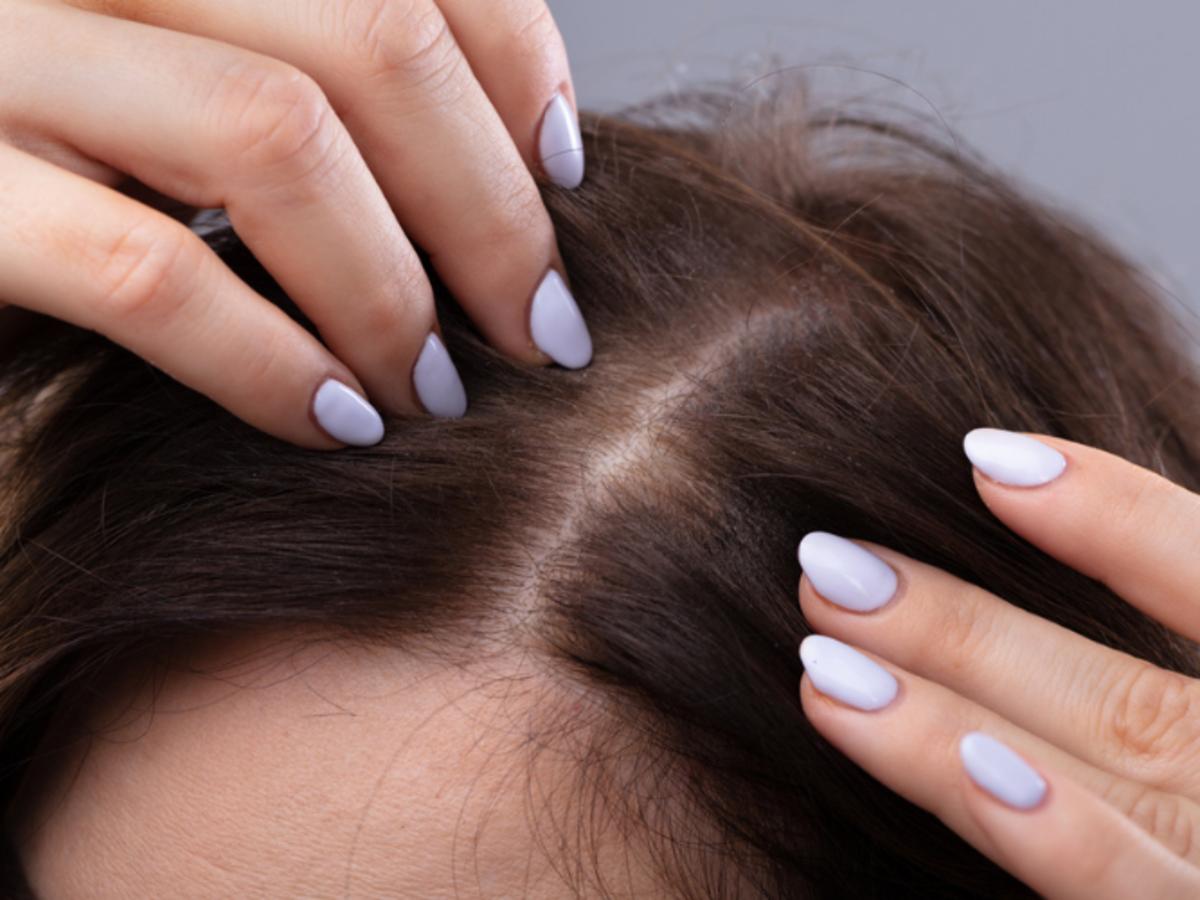 wypadające włosy przed użyciem Aktywatora wzrostu do włosów osłabionych, Receptury Babuszki Agafiit