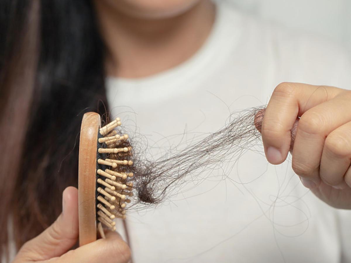 Wypadanie włosów - co stosować