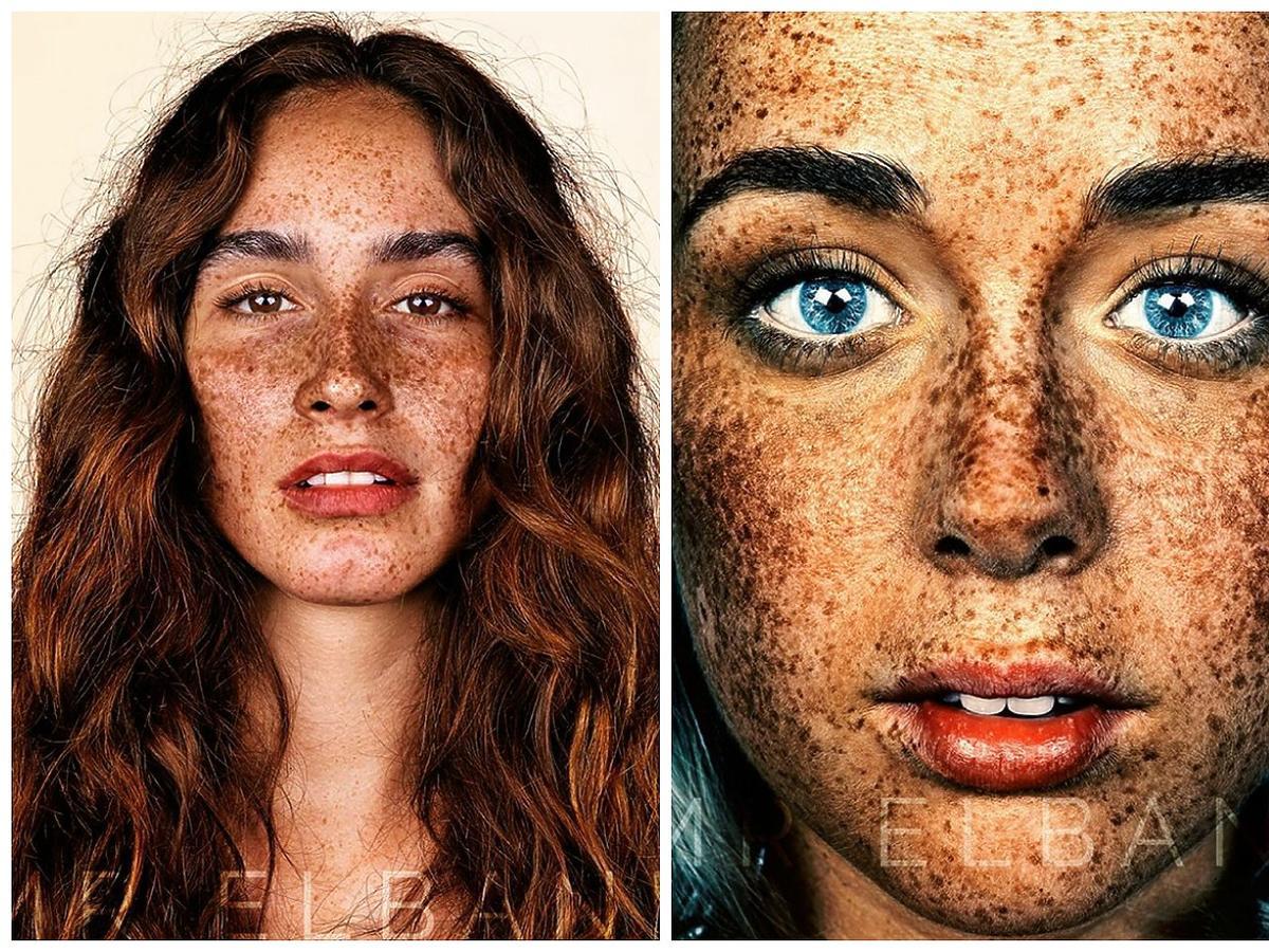 Zachwycające portrety ludzi z piegami