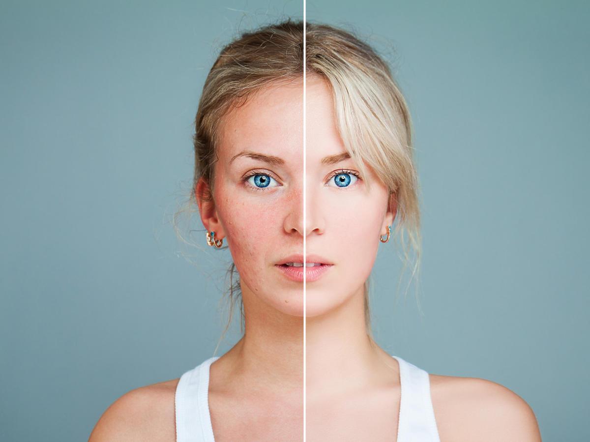 zaczerwienienia skóry