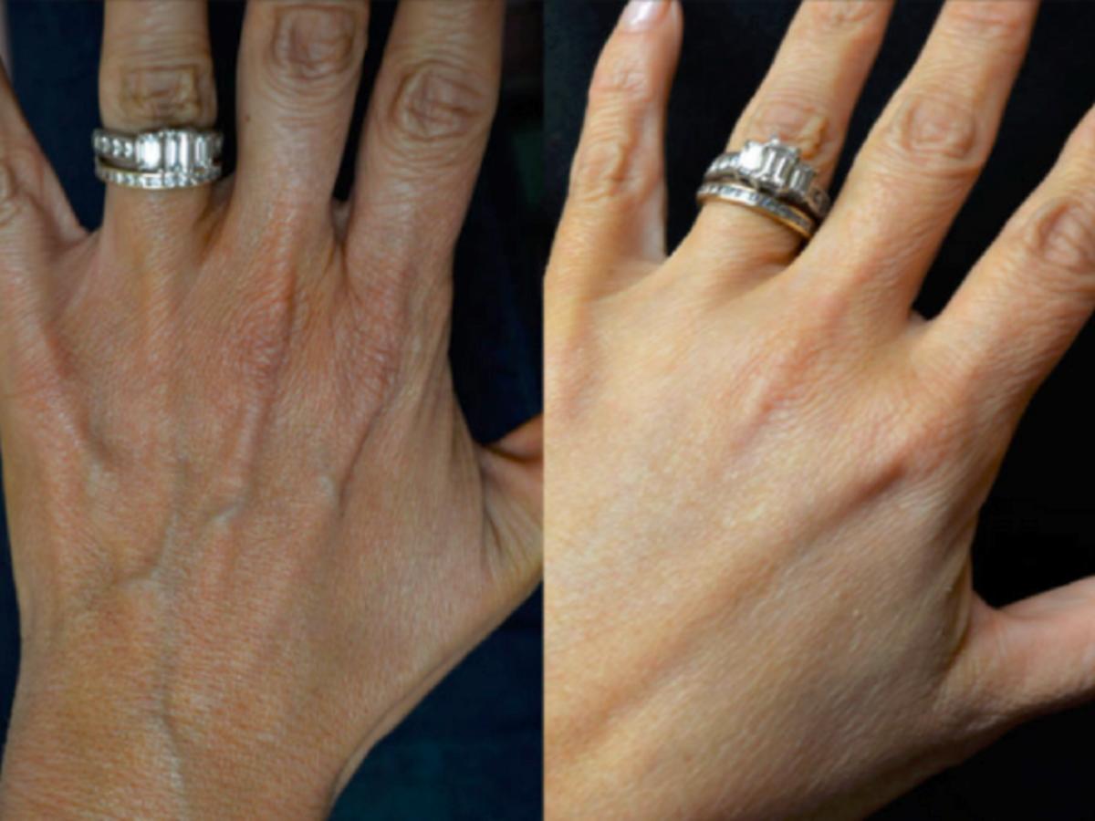Zdjęcie dłoni przed i po zastosowaniu maseczki z białka jaja